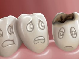 How many caries do you think you have? Image Source: Google